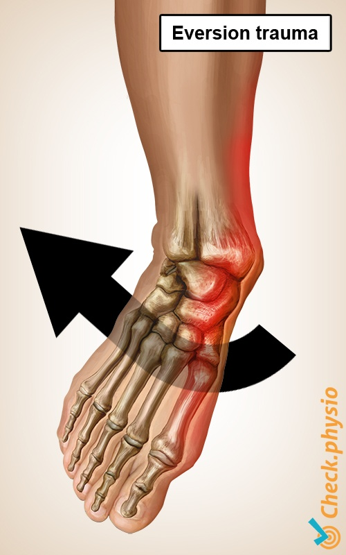 ankle eversion trauma