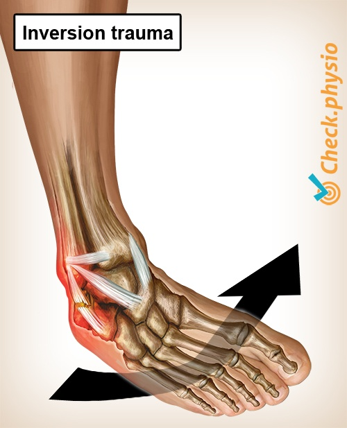 ankle inversion trauma anatomy lateral ligaments