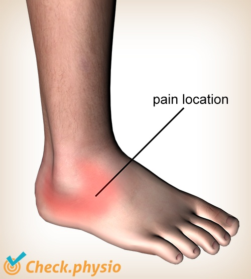 ankle lateral ligaments trauma pain location lateral inversion trauma inversion