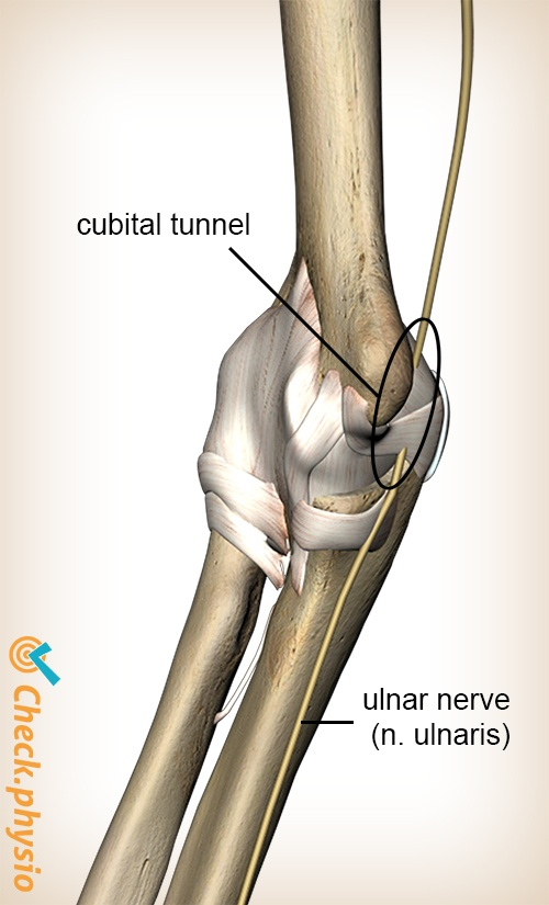 arm cubital tunnel syndrome nervus ulnaris ulnar nerve detail