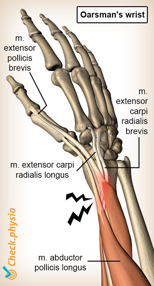 arm oarsman s wirst anatomy extensor carpi radialis brevis longus abductor pollicis