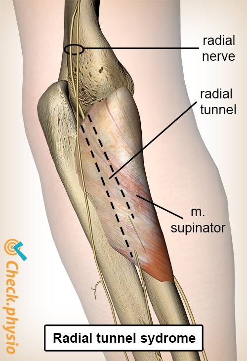 arm radial tunnel syndrome nervus radialis radial nerve