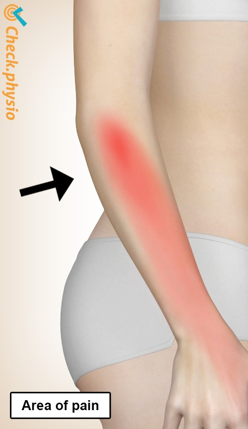 arm radial tunnel syndrome pain area location