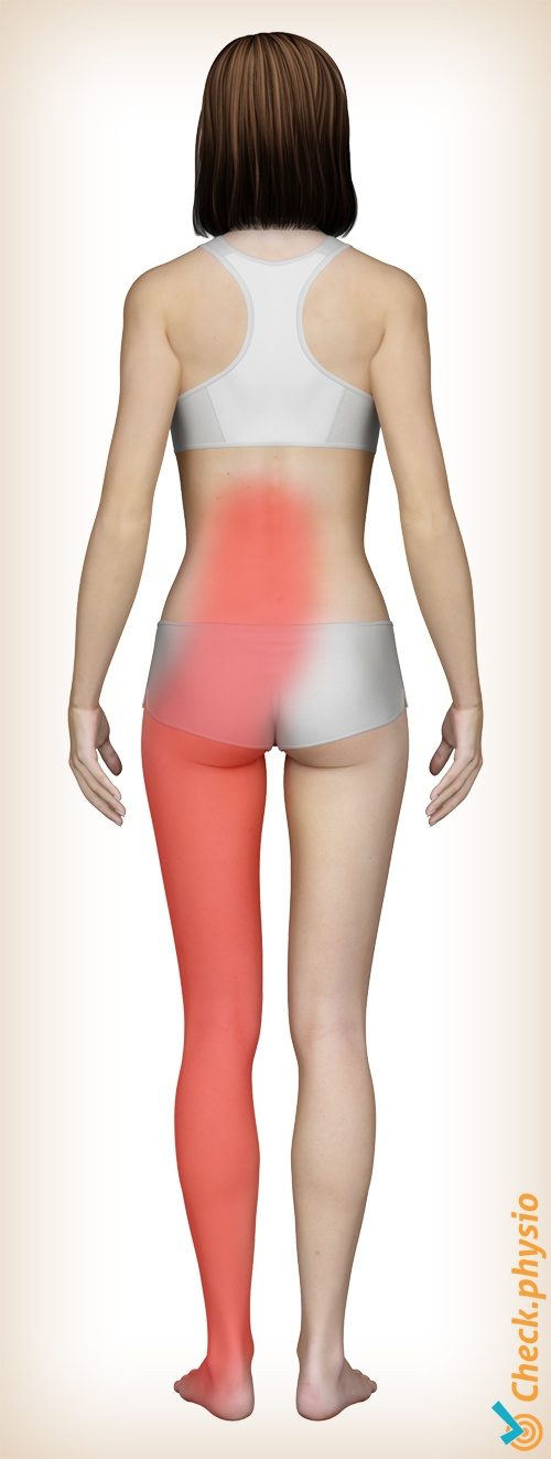 back lumbosacral radicular syndrome hnp pain area location