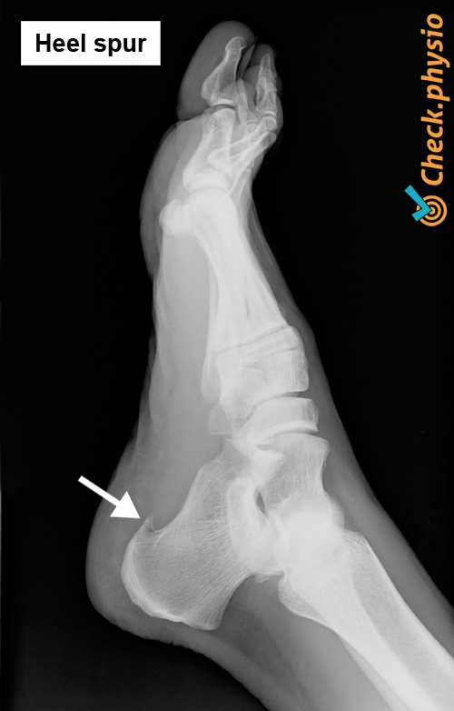 foot calcaneal heel spur x ray