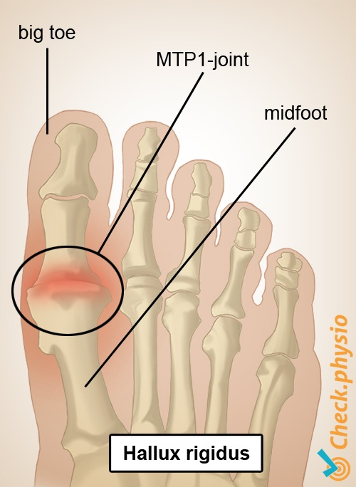 foot hallux rigidus big toe mtp1 joint