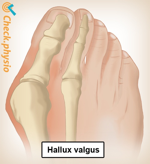 foot hallux valgus bunion toe anatomy