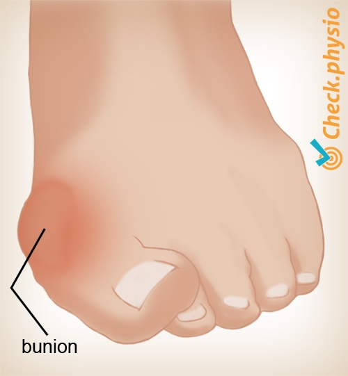 foot hallux valgus bunion toe front
