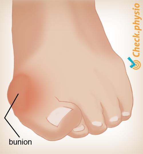 pijn onder de voet in het midden