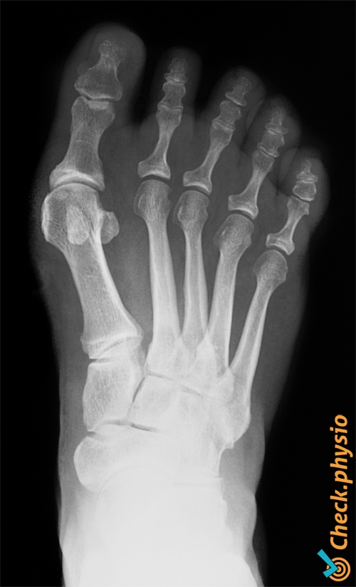 foot hallux valgus bunion toe x ray
