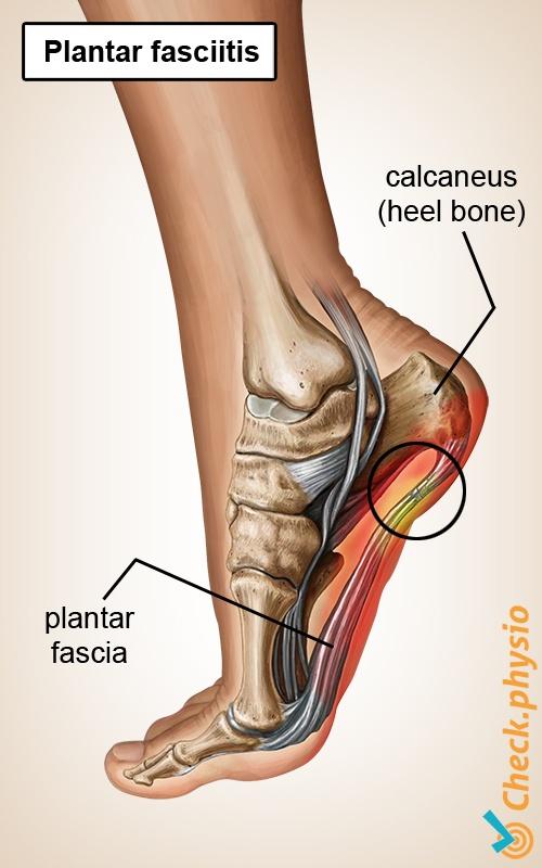 foot plantar fasciitis plantaris apaneurosis