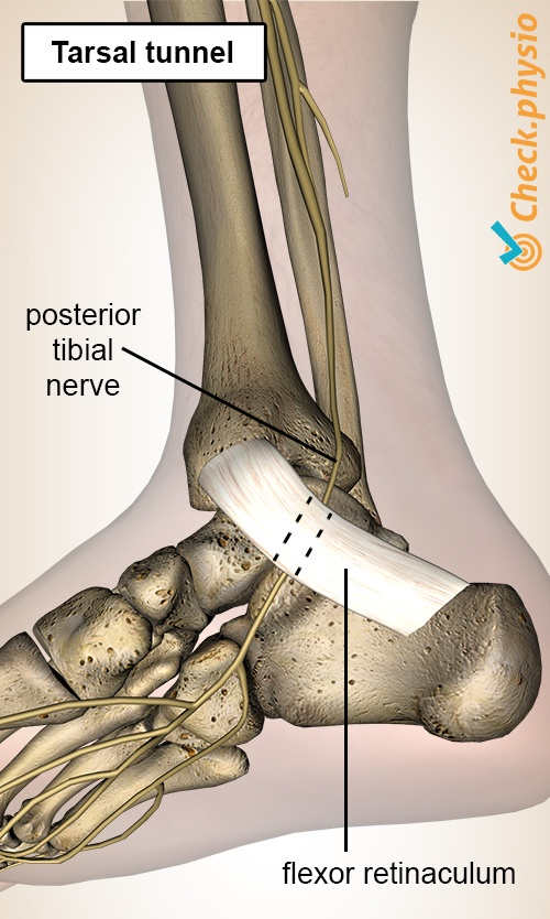 foot tarsal tunnel posterior tibial nerve flexor retinaculum