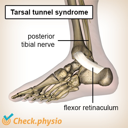 foot tarsal tunnel syndrome posterior tibial nerve flexor retinaculum
