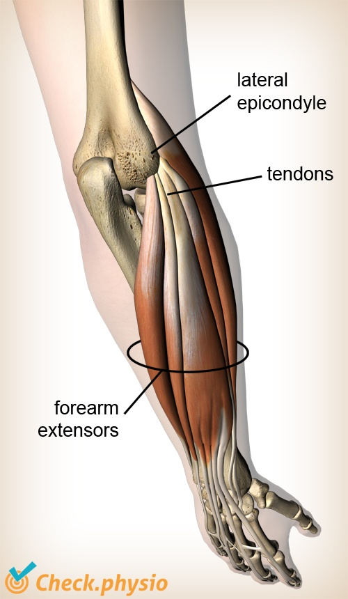 forearm extensors lateral epicondyle tendons