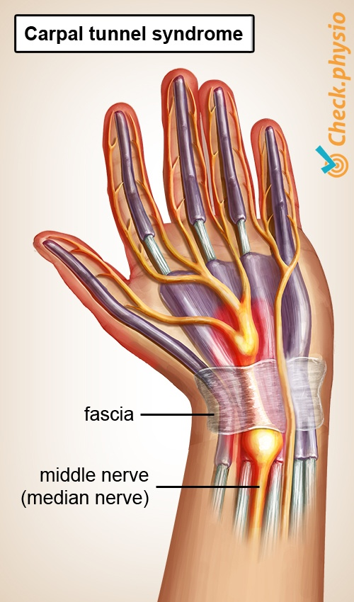 hand carpal tunnel syndrome cts median nerve