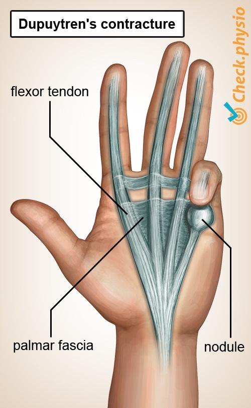 hand dupuytren s contracture disease palmar fascia nodule