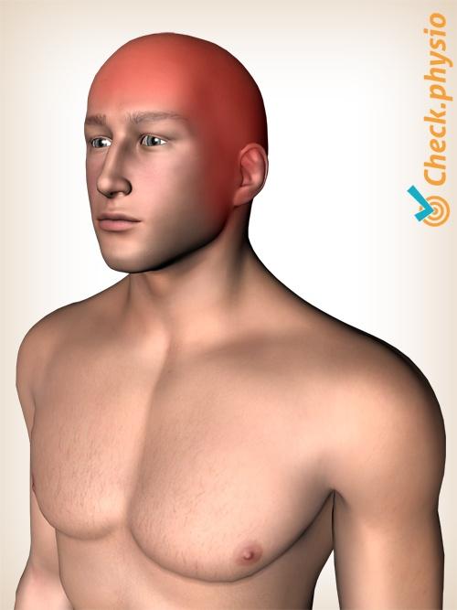 head medication induced rebound headache cgh pain location locations painlocations