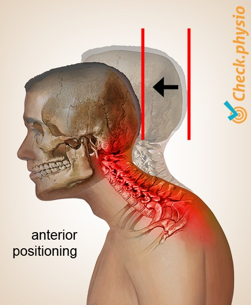 head neck cervical posture syndrome anterior positioning