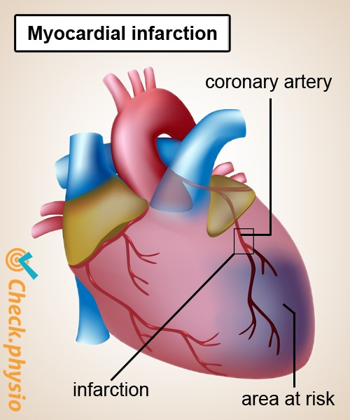 heart attack myocardial infarction coronary artery anatomy