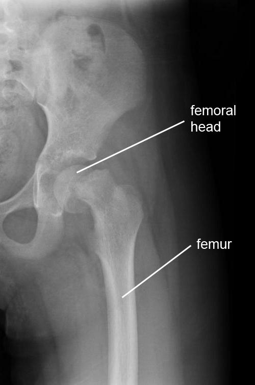 hip epifysiolysis capitis femoris x ray