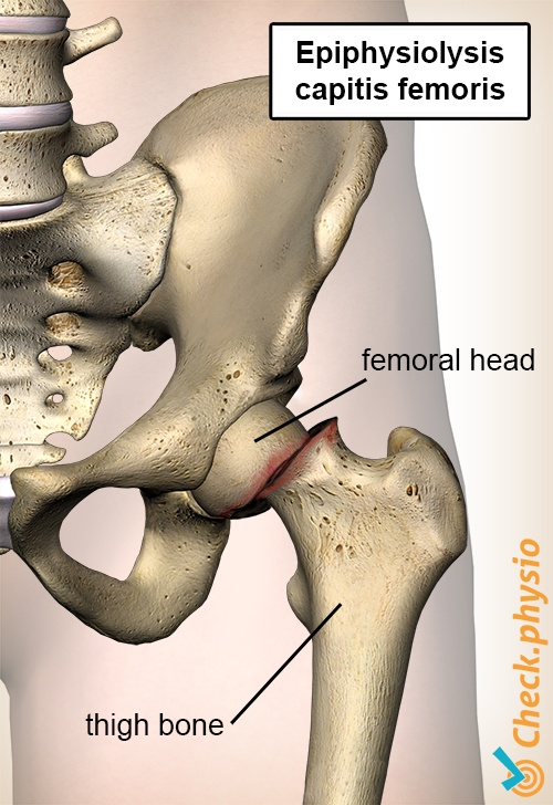 hip epifysiolysis capitis femoris