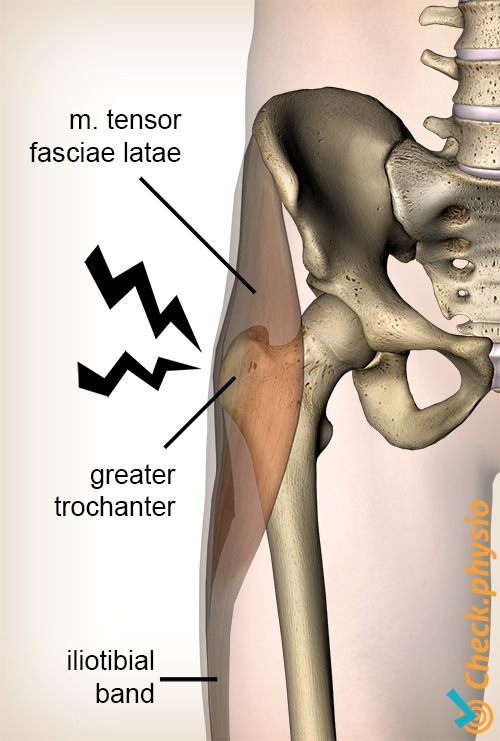 Greater trochanter pain syndrome | Physio Check