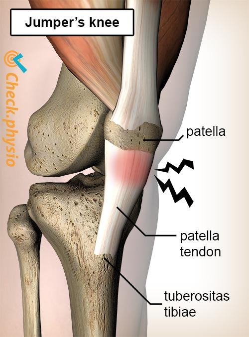 knee jumpers jumper pain patella tendon tendinitis
