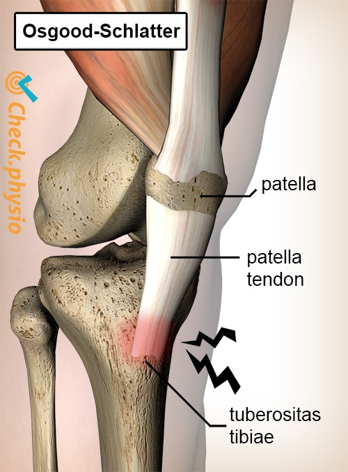 knee osgood schlatter osgoodschlatter pain patella tendon