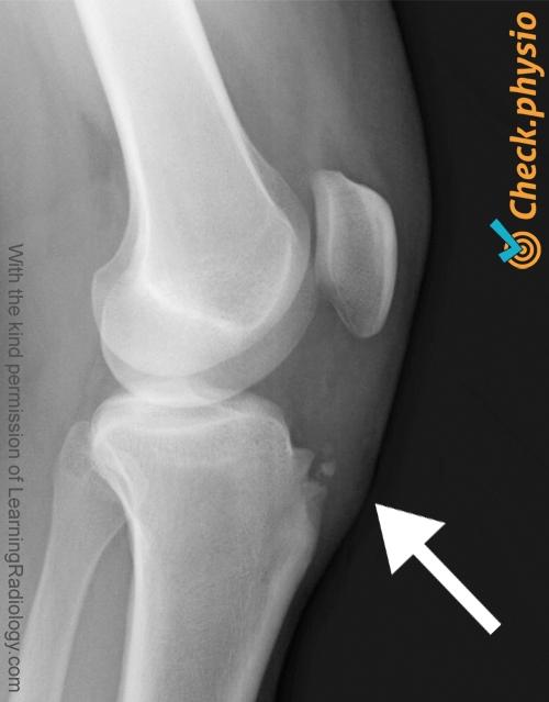 knee osgood schlatter x ray
