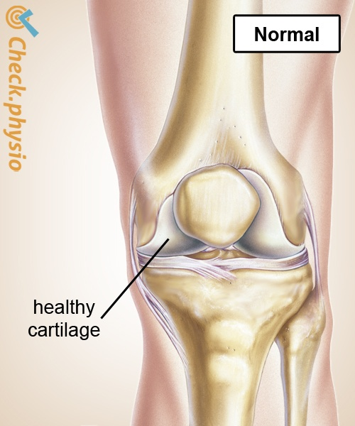 knee osteoarthrosis healthy cartilage