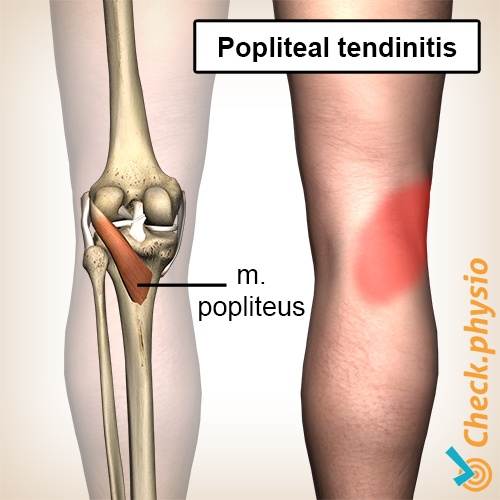 knee popliteus tendinitis tendon