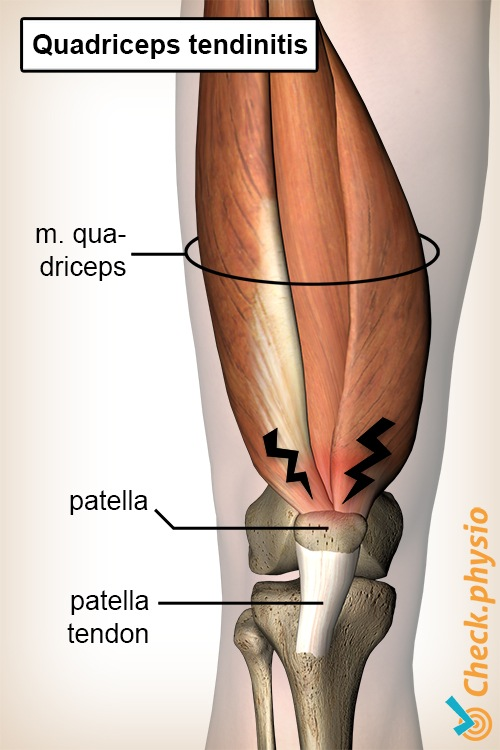 knee quadriceps tendinitis anatomy