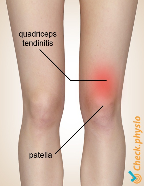 knee quadriceps tendinitis