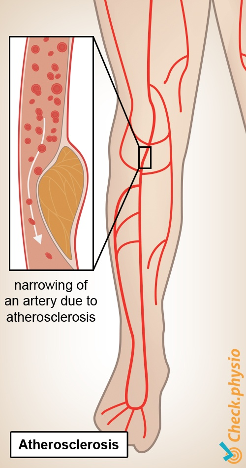 leg intermittent claudication atherosclerosis