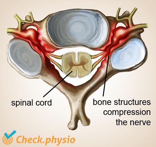 neck cervical radiculopathy stenosis hard neckhernia