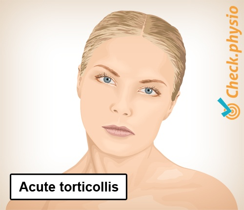 neck torticollis posture condition