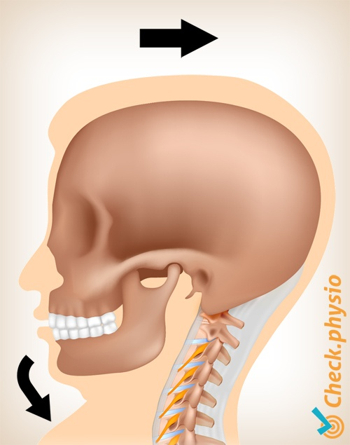 neck whiplash wad acceleration trauma motion 1