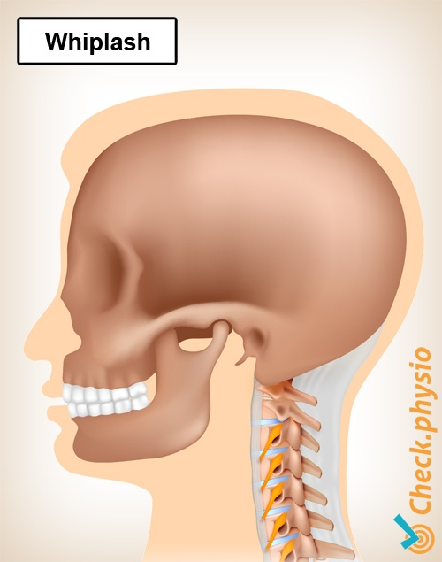 neck whiplash wad acceleration trauma