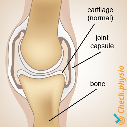 osteoarthrosis arthrosis anatomy normal cartilage