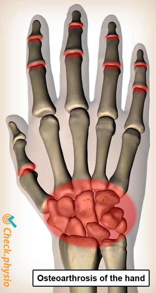 osteoarthrosis hand arthrosis fingers pain area location