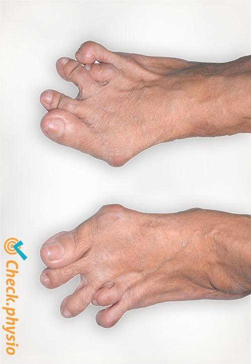 rheumatoid arthritis feet ra