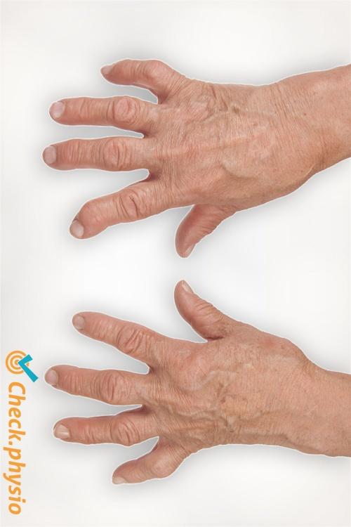 rheumatoid arthritis hands ra