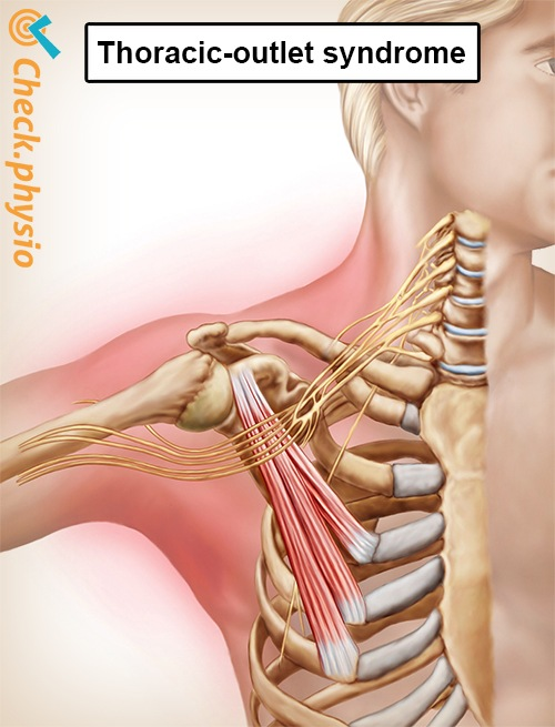 Thoracic outlet syndrome | Physio Check