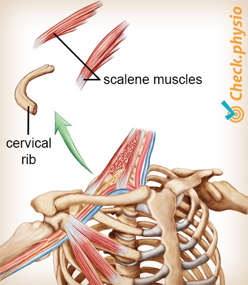 shoulder arm hand tos cervical rib