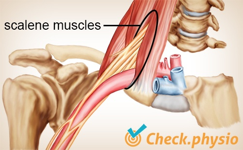 shoulder arm hand tos scalene muscles port