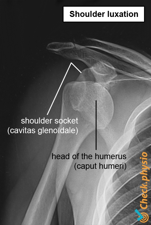 shoulder x ray luxation dislocation