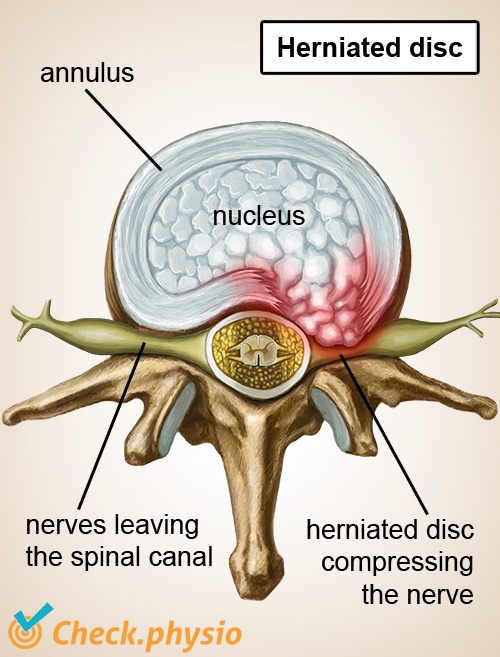 spine herniated disc hnp nerves spinal cord top view