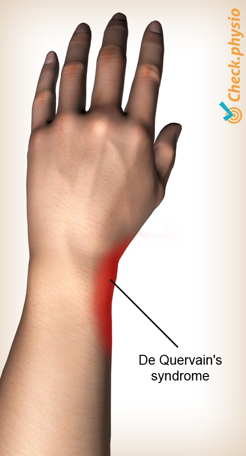 wrist de quervain syndrome disease pain area location