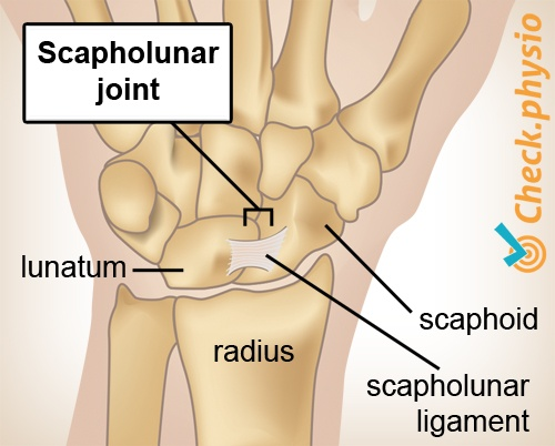 wrist scapholunar joint ligament lunatum scaphoideum